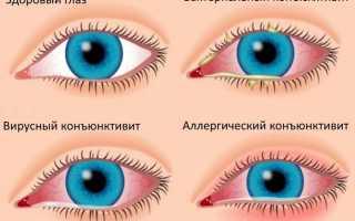 Как испортить зрение