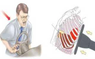 Как узнать, сломано ли ребро